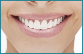 trattamenti estetici denti