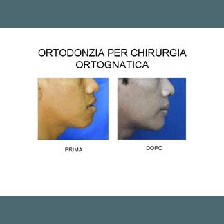 ortodonzia per chirurgia ortognatica