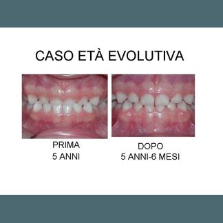 caso eta evolutiva