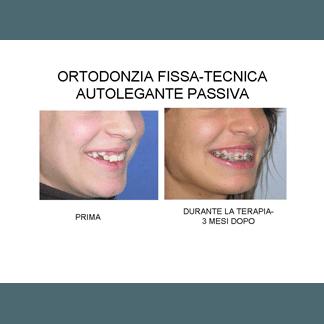 ortodonzia fissa-tecnica autolegante passiva