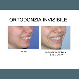 ortodonzia invisible