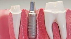 analisi salute denti e gengive
