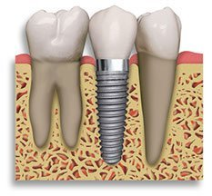 Diagram of dental implants in Doncaster