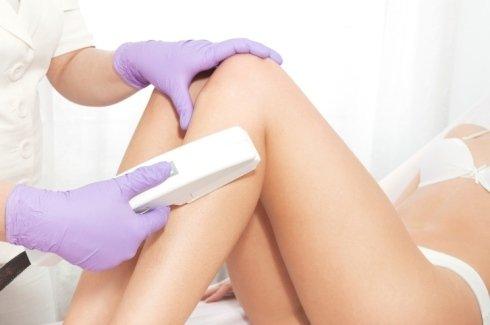 trattamenti estetici laser, epilazione laser, epilazione definitiva