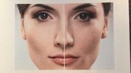 rinnova il tuo viso