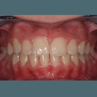 dopo trattamenti dentali
