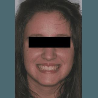 dopo apparecchi dentali