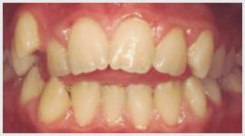 trattamento ortodonzia
