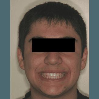 dopo apparecchio ortodontico