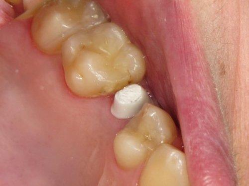 placchetta bianca tra  i denti