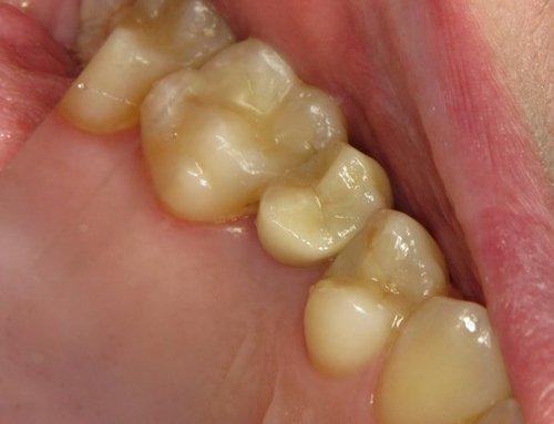 dentatura inferiore