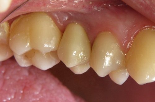 carie su un dente