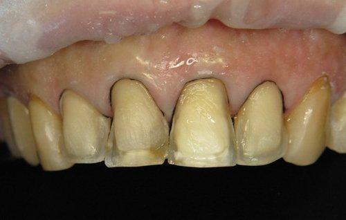 denti con carie pericolosa
