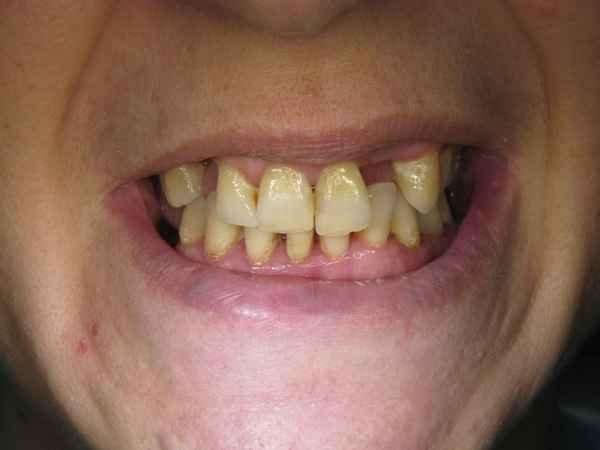 bocca di un uomo senza due denti