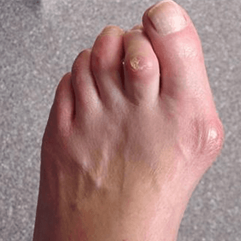 Hammer toe with corn and bunion