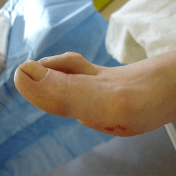 Hammer toe - side view