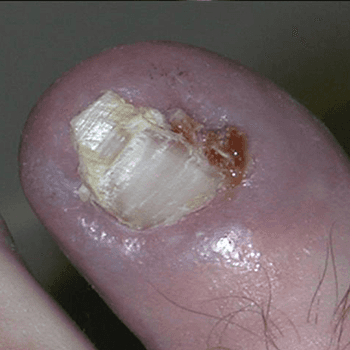 Painful Toe Nail