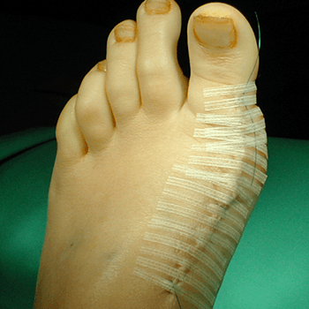 Bunion Severe bunion post