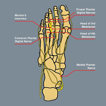 Diagram of Morton's neuroma