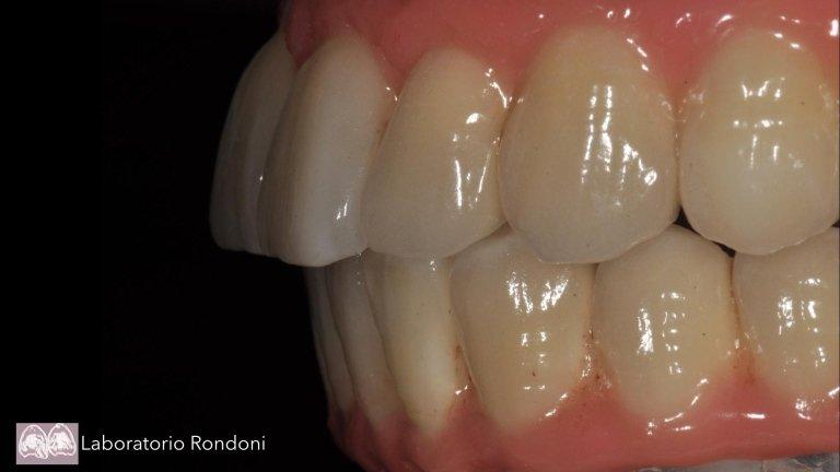 impianti dentali osteointegrati savona