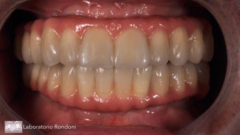 dentista impiantologo savona