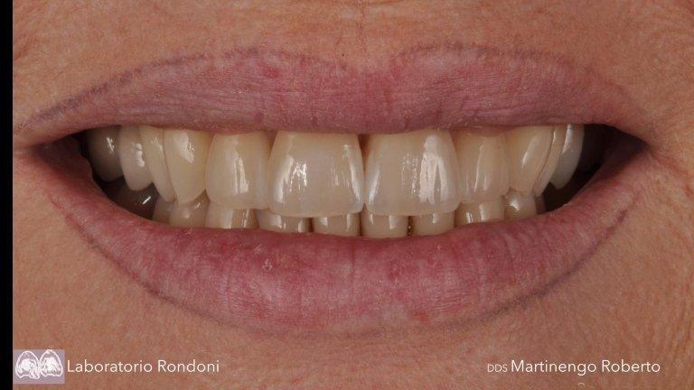 Protesi dentarie Savona