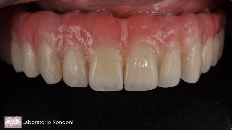 Impèiantologia dentale savona