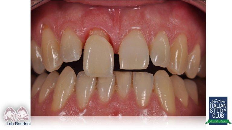 dentisti protesi