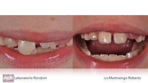 otturazioni dentarie