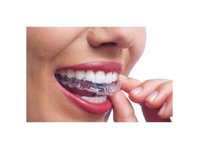 ortodonzia infantile e per adulti