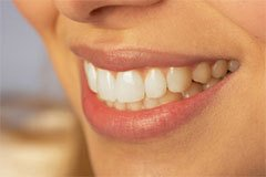 teeth whitening Milton, FL