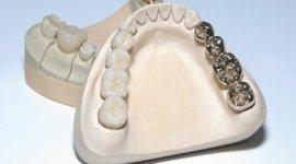 dentiere, protesi, odontotecnico