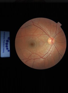 Digital retinal screening