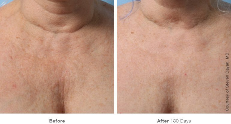 Chest Before & After