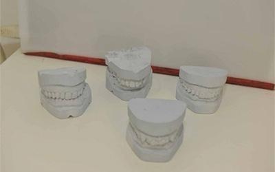 delle protesi dentali in ceramica
