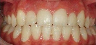 dei denti raddrizzati grazie a un trattamento ortodontico