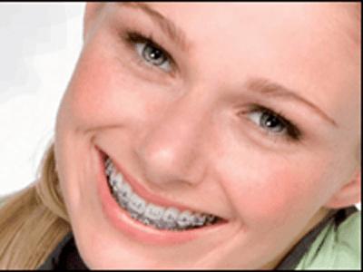 trattamenti denti