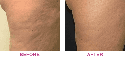 Top of a thigh before and after treatment