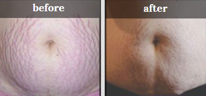 A lady's stomach before and after body peeling