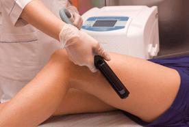 Hair management treatment in progress on a lady's upper leg