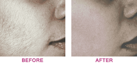 Lady with dark downy hair on her face, before and after treatment