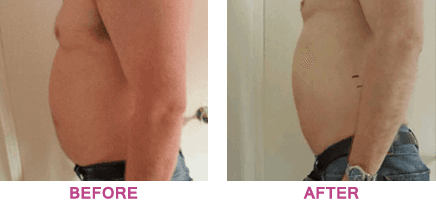 Side view of a stomach before and after treatment