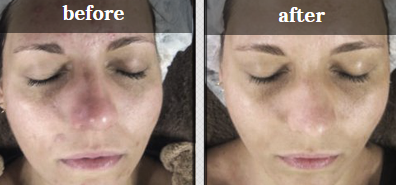 A lady's face before and after a peel treatment
