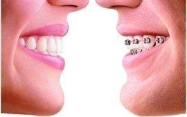 apparecchio denti
