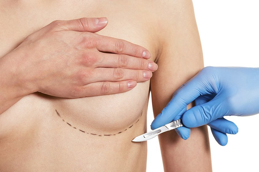 Wollongong, NSW, Breast Implants