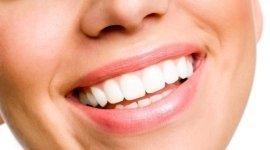 ortodonzia, odontoiatria, sbiancamento dentale