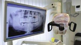 ortodonzia, ablazione del tartaro, pulizia dei denti