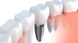 implantologia dentaria, disegno di un impianto dentale, inserimento di un dente finto