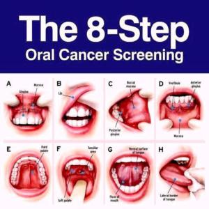 cancer bucal sintomas)