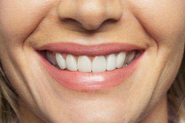 impianto dentale fisso o mobile invisibile